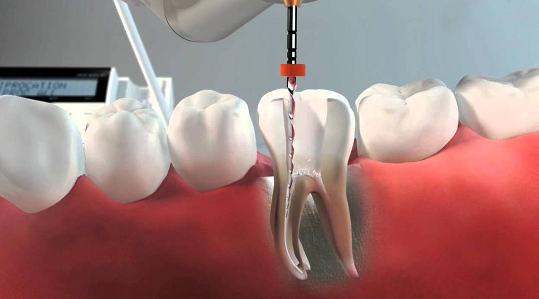 Qué es una endodoncia y para qué sirve