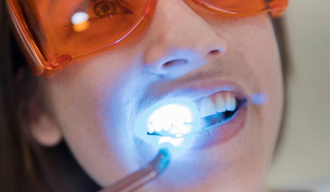 Los tratamientos más habituales para mejorar nuestra sonrisa