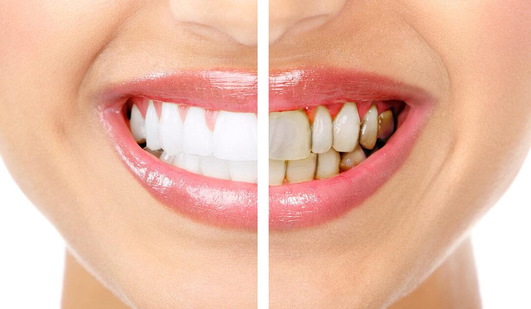 En qué consiste el tratamiento periodontal.