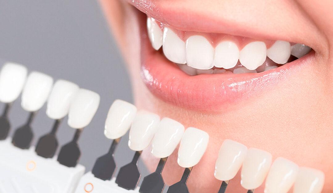 5 mitos sobre el blanqueamiento dental