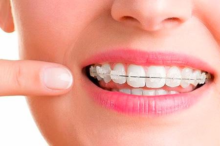Ortodoncia en sevilla brackets estéticos