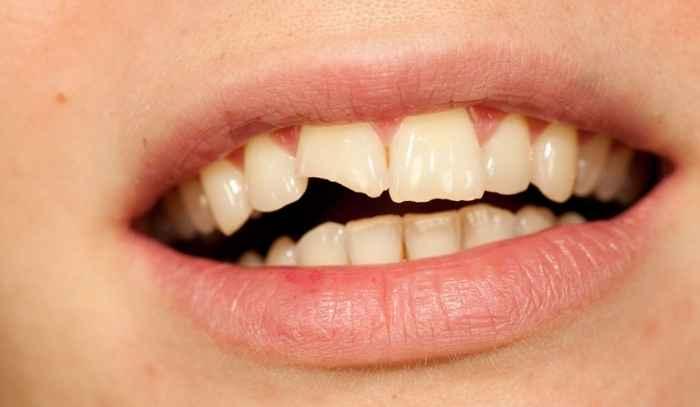 Golpe en los dientes: qué hacer y qué tener en cuenta