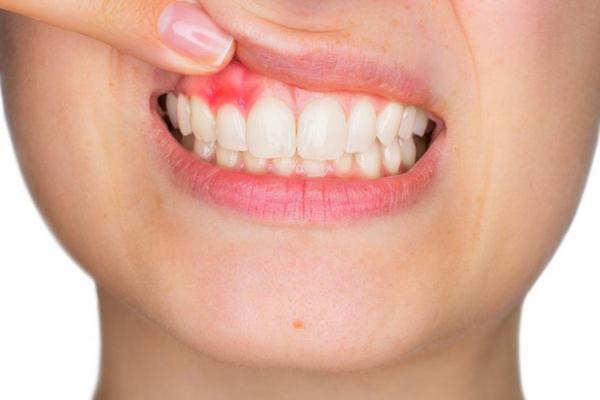 encía-inflamada-infeccion-diente