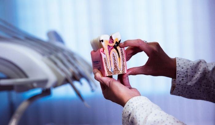 Infección dental: Lo que debes saber