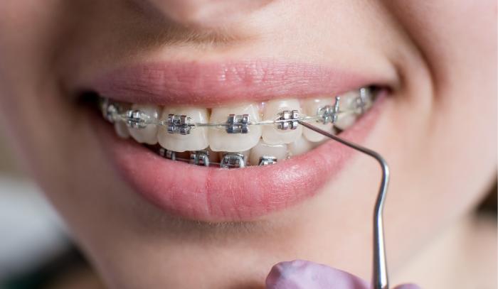 Urgencias de ortodoncia: ¿Qué debes hacer en cada caso?