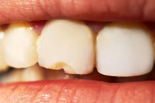 diente-fracturado-como-saber-si-un-diente-se-ha-roto