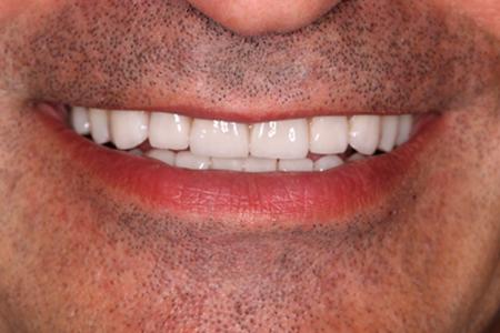 Estética dental sevilla carillas