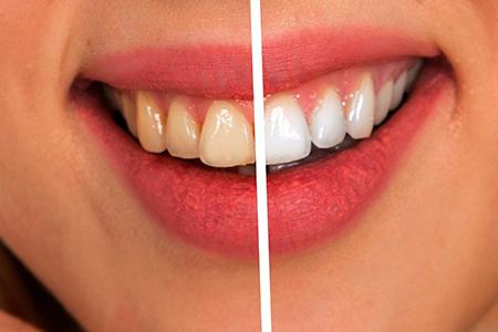 Estética dental sevilla blanqueamiento