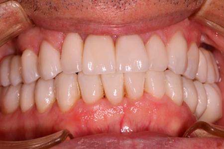 Estética dental sevilla corona