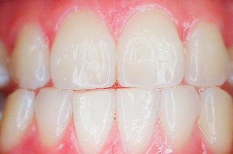 tratamiento odontologico