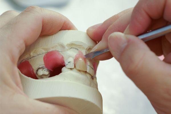 rotura-de-protesis-dental-se-puede-arreglar-una-dentadura-postiza-rota