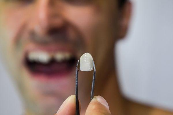 Cómo arreglar un diente roto