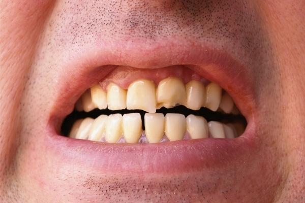 como-arreglar-un-diente-roto-o-fisurado