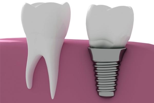Implante dental que se mueve