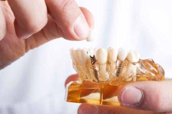 por-que-se-me-mueve-el-implante-dental