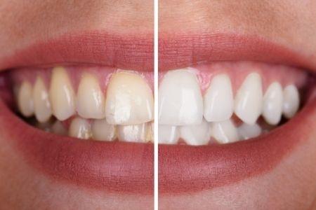 sensibilidad-dientes-blanqueamiento-dental